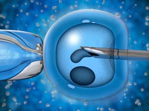 Как проходит предимплантационная диагностика