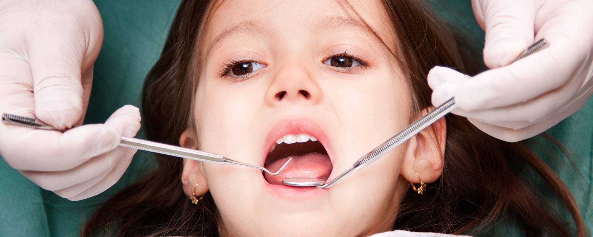 Серебрение зубов у детей: особенности процедуры и отзывы
