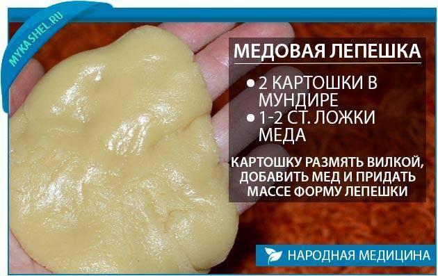 Как правильно сделать лепешку от кашля из горчицы и меда — несколько простых рецептов
