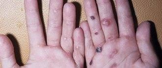 Люди бабочки заболевание. возможные осложнения болезни. буллезный эпидермолиз: причины