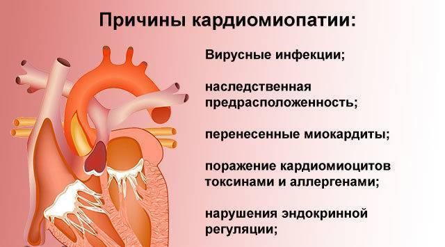 Кардиопатия у детей: что это, виды и как ее лечить