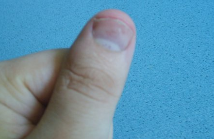 Нарыв на пальце возле ногтя: как лечить, если нарывает?