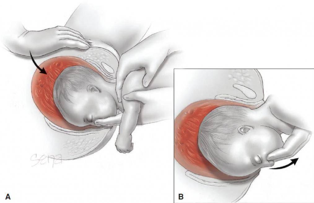 Когда переворачивается ребенок вниз головой перед родами: упражнения для беременной чтобы малыш перевернулся