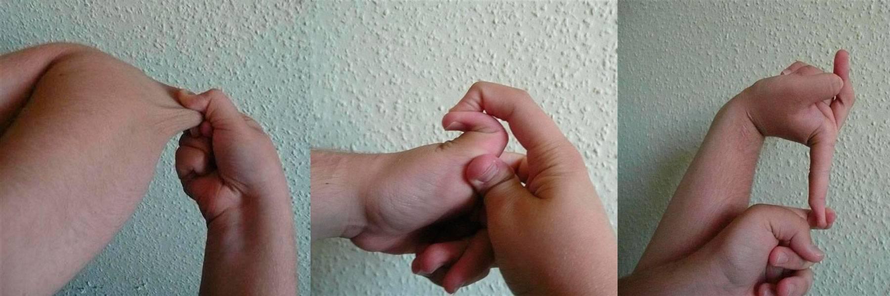 Дисплазия соединительной ткани: причины, симптомы, диагностика, лечение