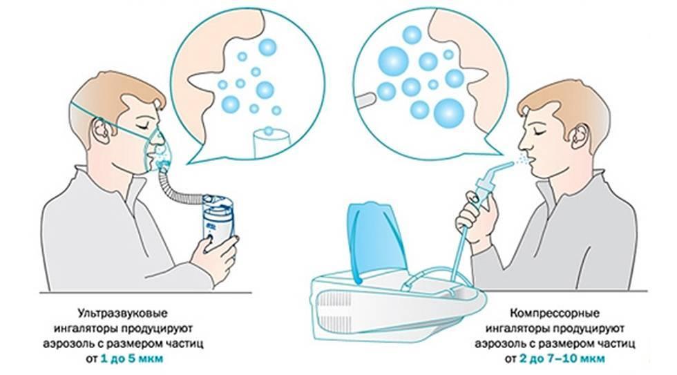 Раствор для ингаляций от кашля для детей: ингаляции небулайзером физраствором, при лающем кашле, ларингите и фарингите