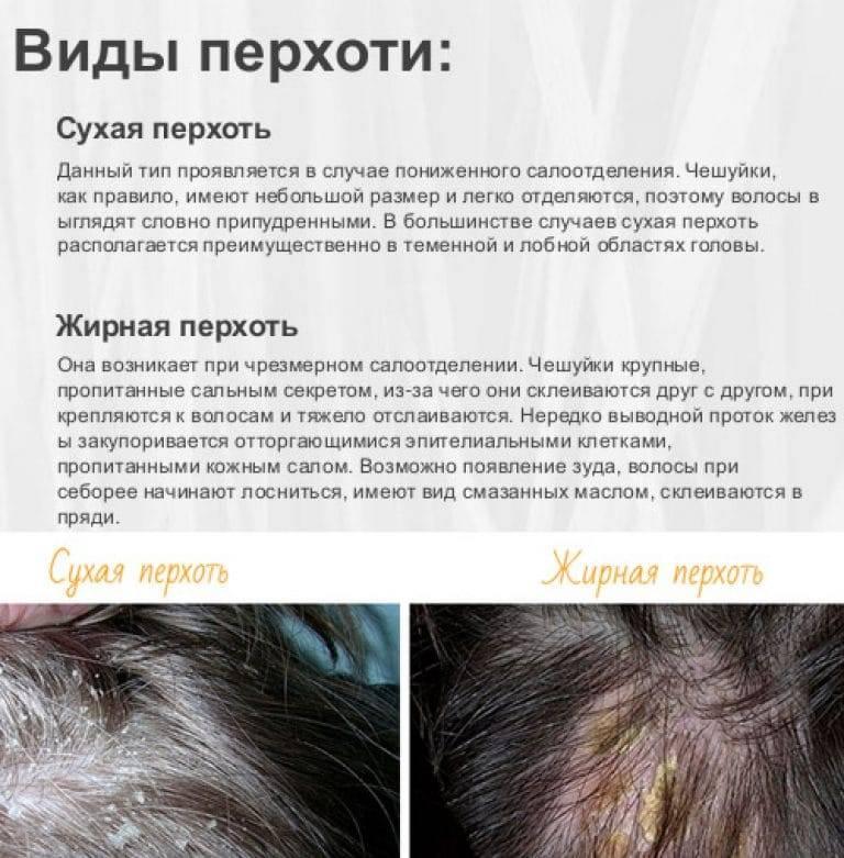 Перхоть и психосоматика: причины возникновения - пересыхание кожи головы, стресс, грибок, психоанализ и гипотеза