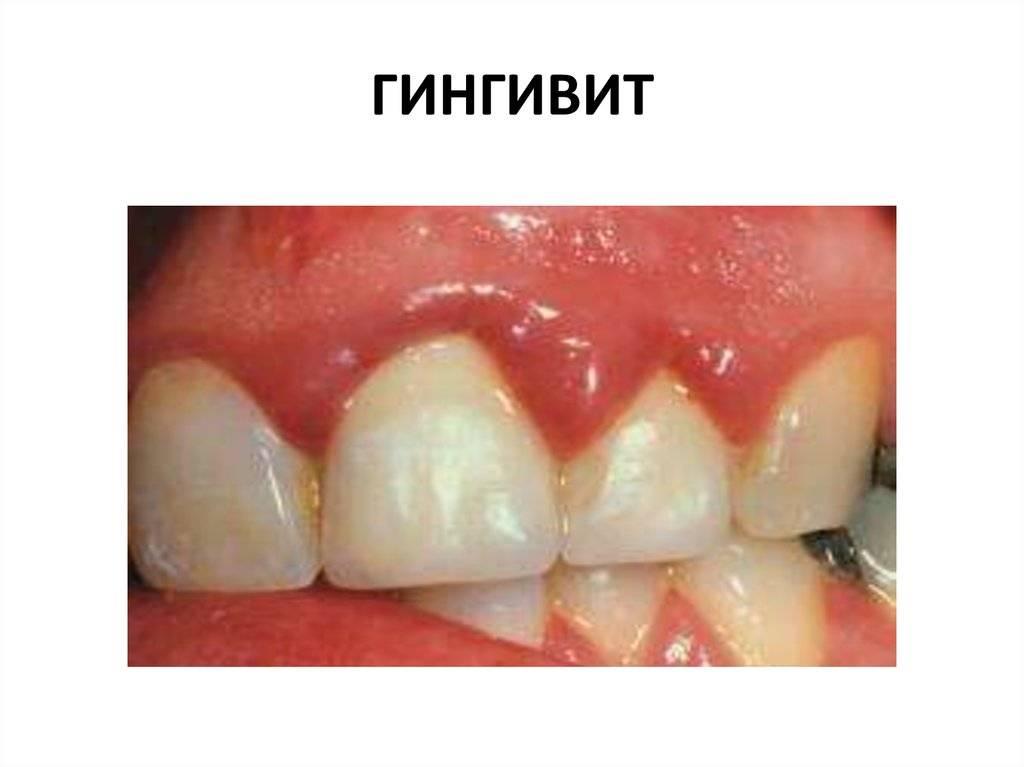 Гингивит у ребенка: фото, причины, симптомы, лечение, осложнения