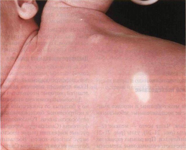 Белые пятна на теле ребенка – разновидности, симптомы и причины появления