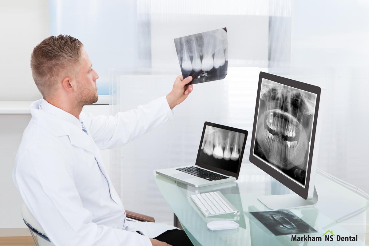 Снимок зуба при планировании беременности