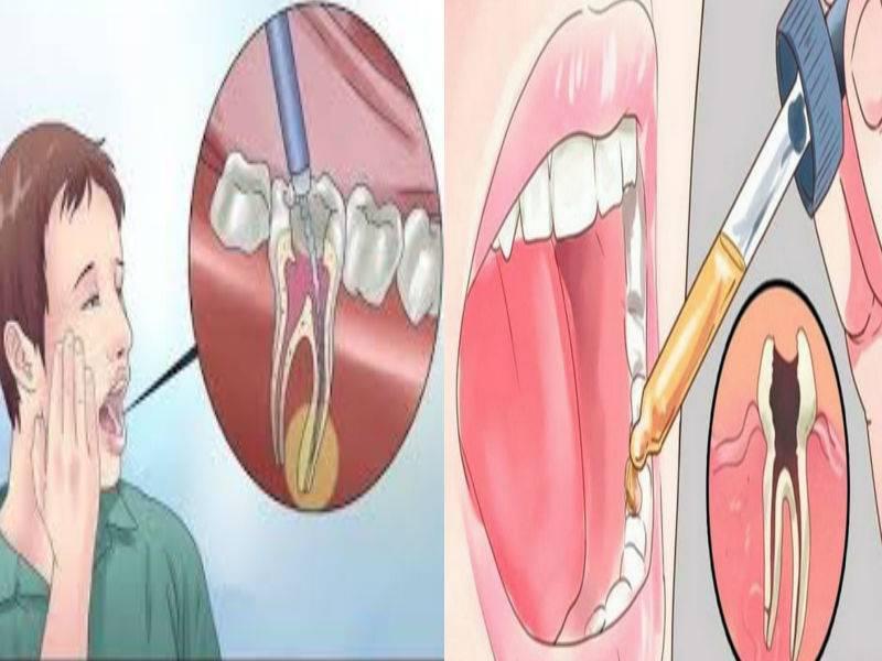 У ребенка болит зуб: чем обезболить, не навредив здоровью малыша