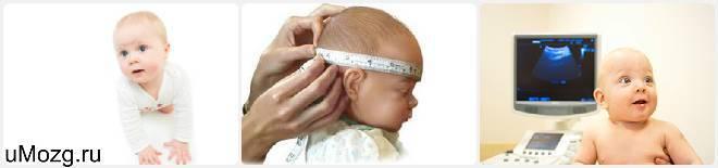 Дилатация ликворной системы головного мозга у грудничка. причины и последствия возникновения дилатации боковых желудочков головного мозга у новорожденных
