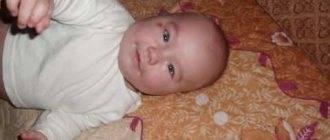 Ребенок 9 месяцев крутит головой