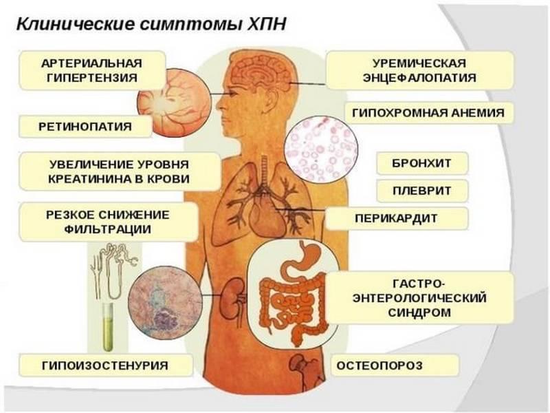Почечная недостаточность у детей: симптомы острой и хронической форм, причины, лечение