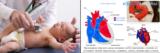 Врожденные пороки сердца у детей: 6 основных причин, классификация, 7 симптомов, лечение