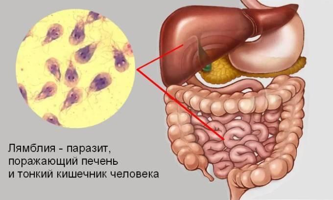 Лямблии у детей симптомы и лечение - лечение печени