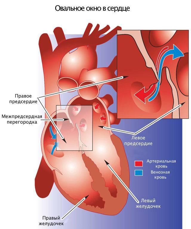 Открытое овальное окно в сердце у ребенка — сердце