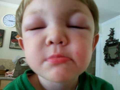 У ребенка отек глаз: причины, способы лечения