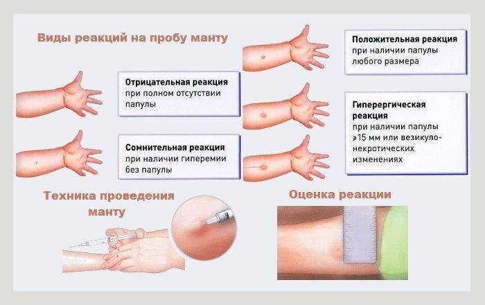Прививка манту: обязательна или нет, образец отказа от реакции в детском саду, можно ли не делать, закон о пробе в садике