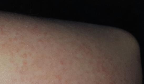 Аллергия на порошок: фото у ребенка, взрослых, симптомы аллергии на стиральный порошок у детей, моющие средства на руках, хлорку в бассейне, бытовую химию