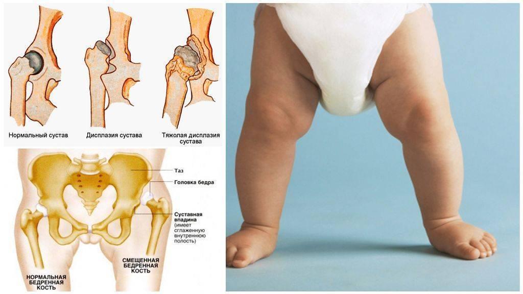 Транзиторный артрит тазобедренного сустава у детей