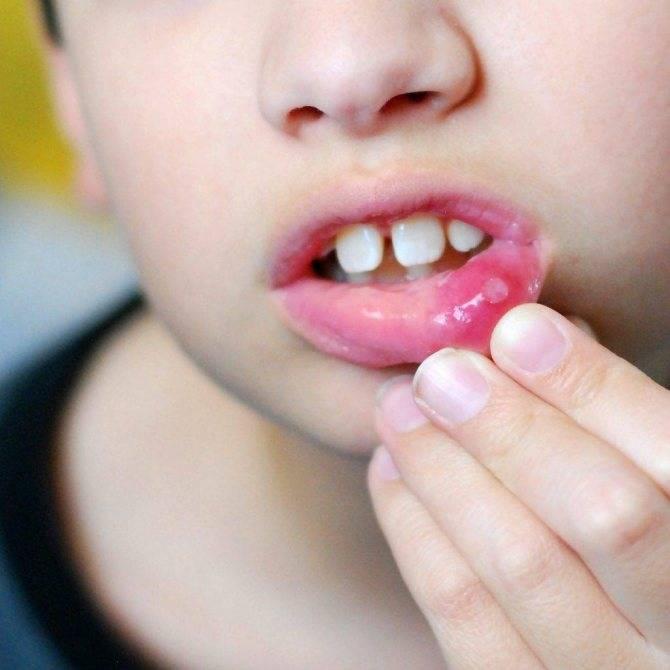 Стоматит у детей - что это такое, от чего бывает, симптомы, виды, афтозный