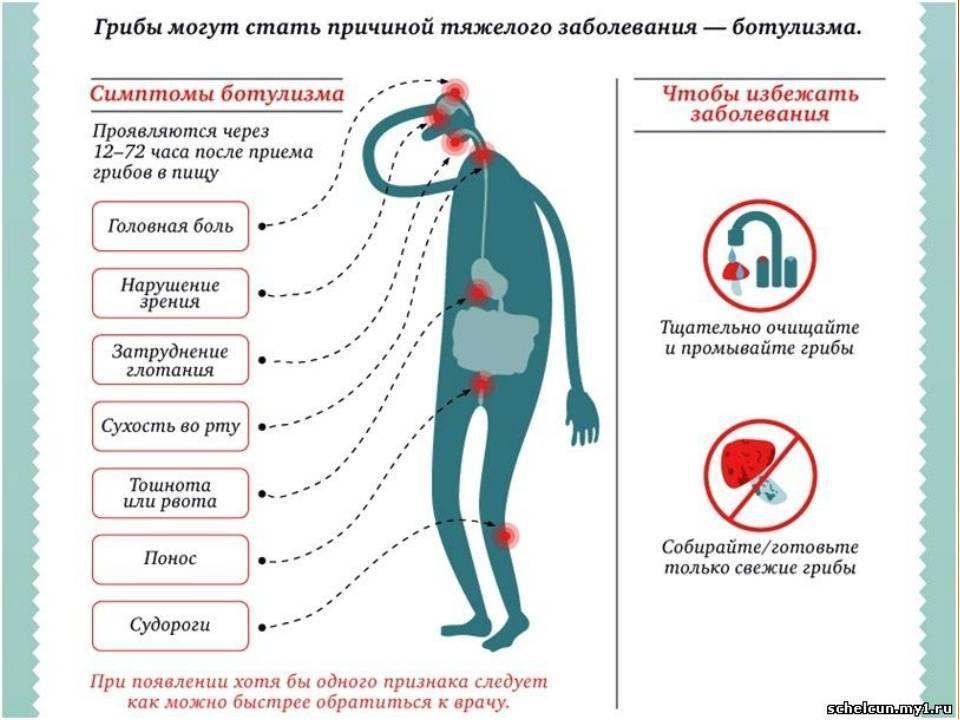 Что делать при отравлении ребёнка — пищевом, химическом, медикаментозном