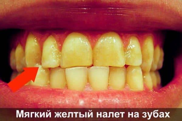 Налет на зубах у ребенка: причины белых, желтых, черных и коричневых отложений