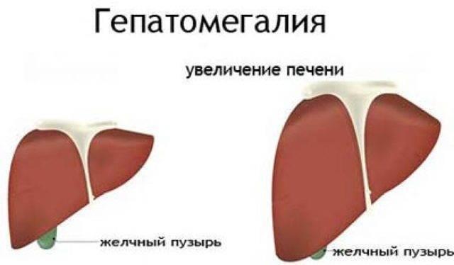 Уз-признаки гепатомегалии: эхокартина увеличения печени