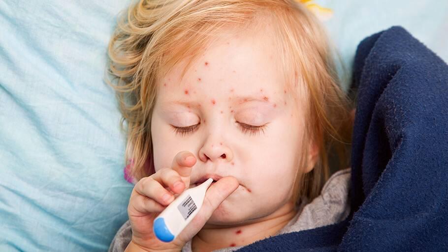 Как проявляется корь у детей: фото симптомов, причины, помощь при кори и лечение заболевания