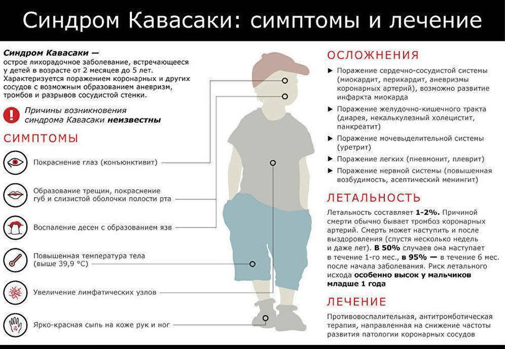 Болезнь Кавасаки у детей - фото, симптомы поражения вирусом, причины и лечение
