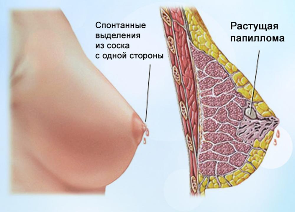 Набухает грудь при беременности: когда, почему и что предпринять