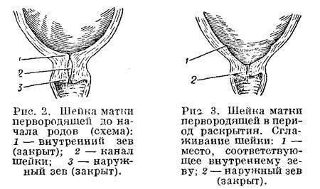 Цервикометрия, исследование, процедура, при беременности, что это