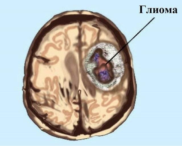 Опухоль головного мозга у детей: симптомы и первые признаки на ранних стадиях, причины и лечение, отдаленные последствия