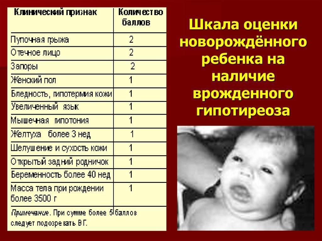 Врожденный гипотиреоз у детей: симптомы, лечение и прогноз