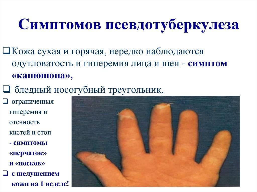 Псевдотуберкулез: симптомы, диагностика, лечение и профилактика