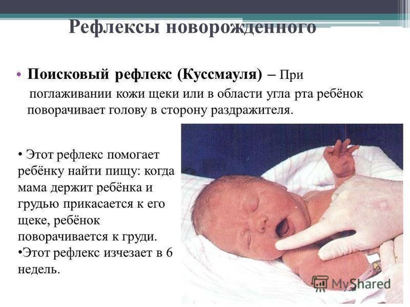 С какими рефлексами рождается ребенок? на какие виды делятся рефлексы новорожденных?