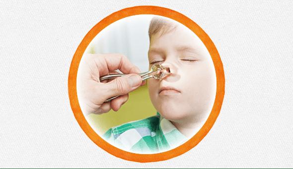 Ребенок засунул в нос пластилин, бусинку, семечку: что делать