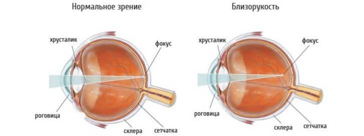 Что такое склеропластика глаз, в каких случаях эта операция показана детям, каковы доводы за и против ее проведения?