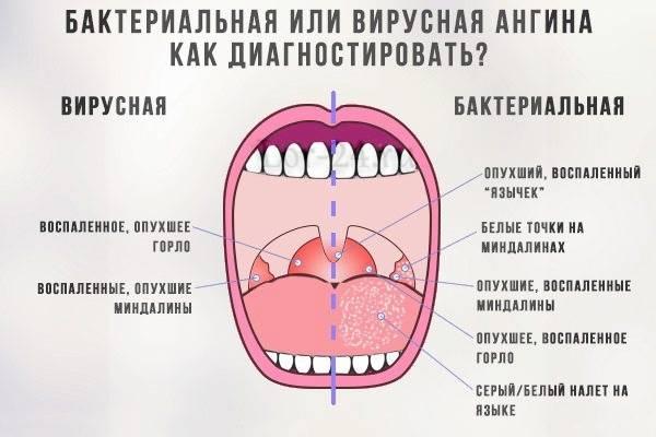 Антибиотик при герпесной ангине