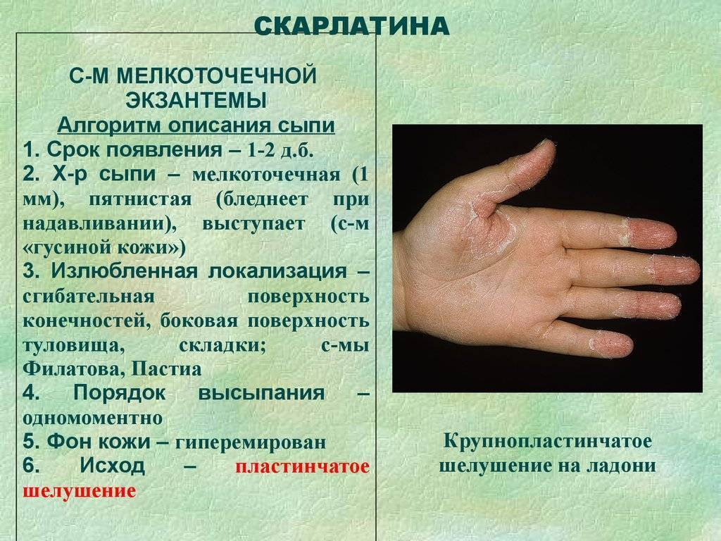 Скарлатина: симптомы, профилактика и лечение + 50 фото сыпи