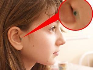 Шунтирование уха у ребенка: показания, ход процедуры и возможные последствия