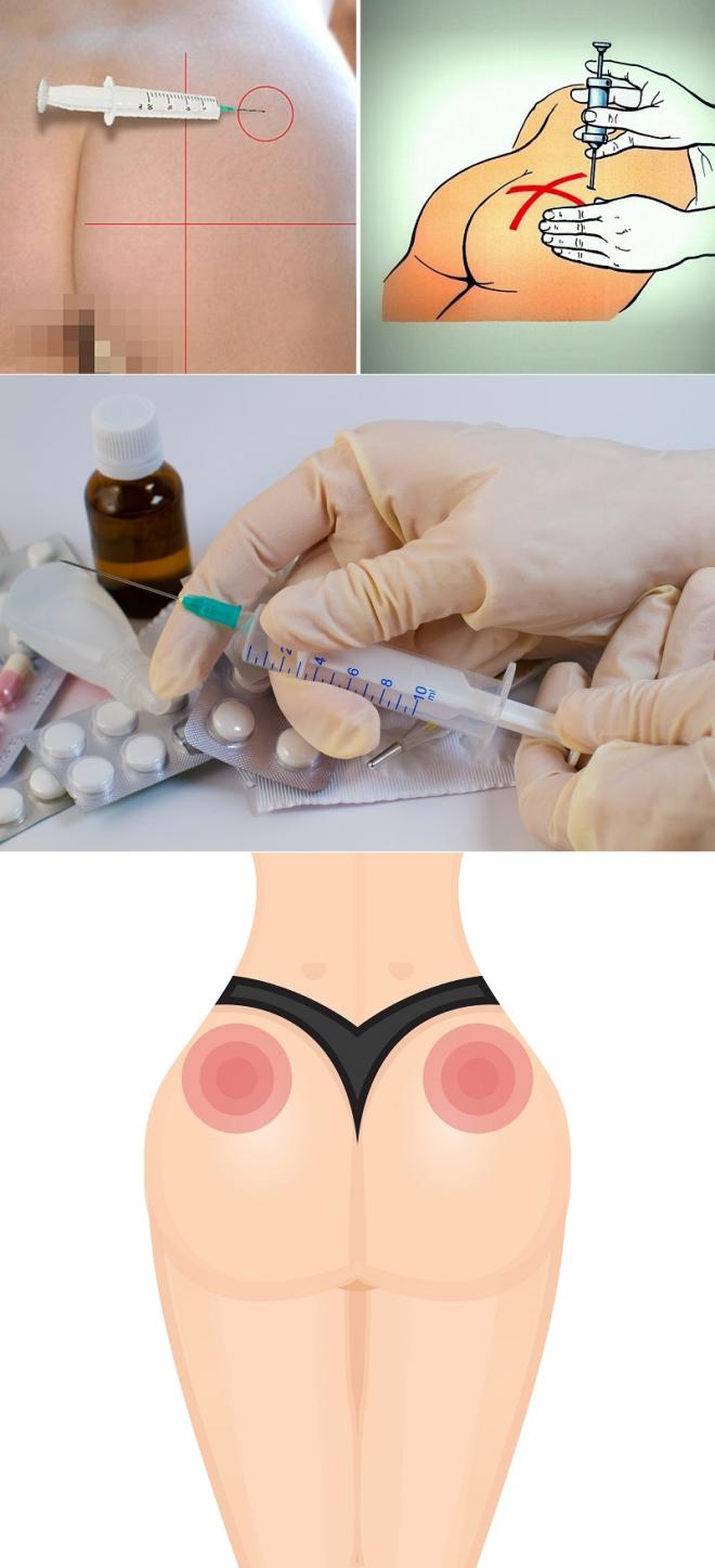 Как правильно делать укол внутримышечно