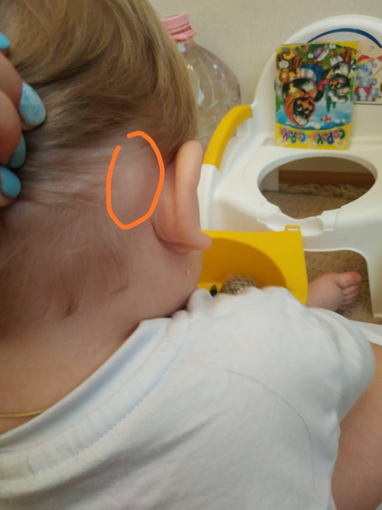 Шишка за ухом: причины и симптомы возникновения, методы лечения заболевания