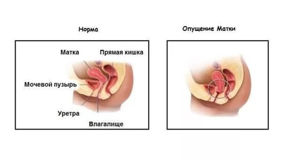 Опущение матки после родов: причины, последствия, лечение / mama66.ru