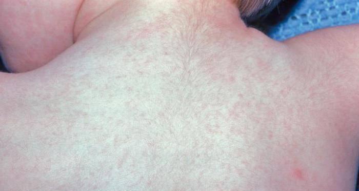 Лихорадка у детей: виды и лечение. симптомы розеолы у детей: фото сыпи на начальной стадии, лечение и профилактика трехдневной лихорадки лекарственная лихорадка симптомы у детей