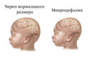 Признаки незрелости головного мозга у новорожденных по узи