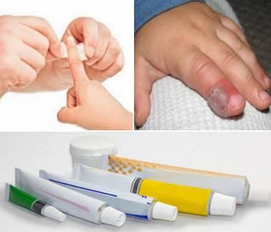Нарыв на пальце руки возле ногтя лечение у ребенка - все о детях