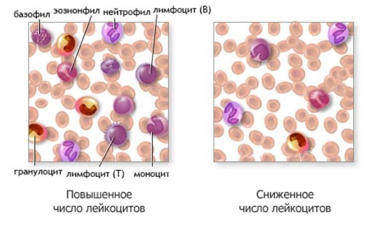 Лейкоцитоз – причины, симптомы, лечение, виды, прогнозы