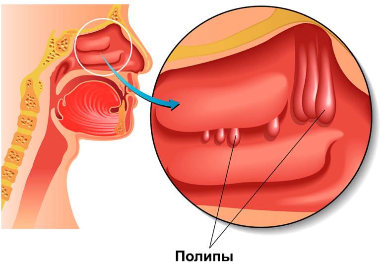 Полипы в носу у ребенка: симптомы, признаки, лечение, как увидеть