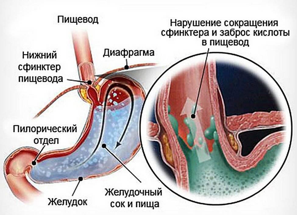 Рефлюкс-эзофагит у детей